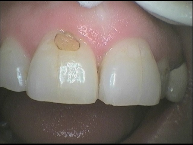 Front Tooth Filling