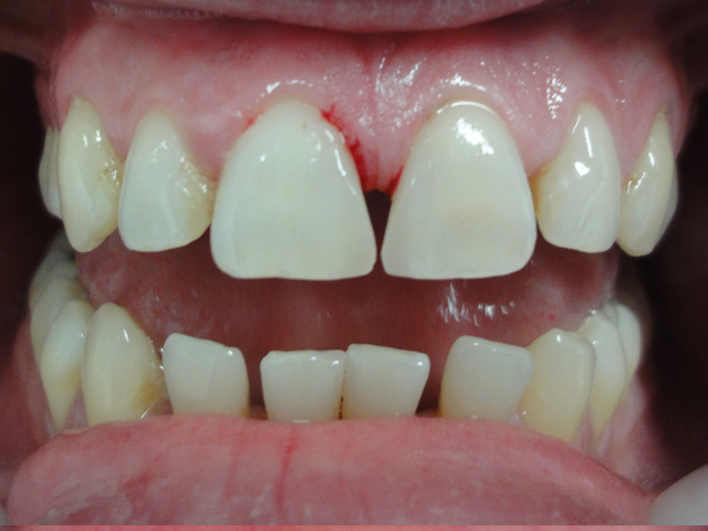 gap closure with composite resin