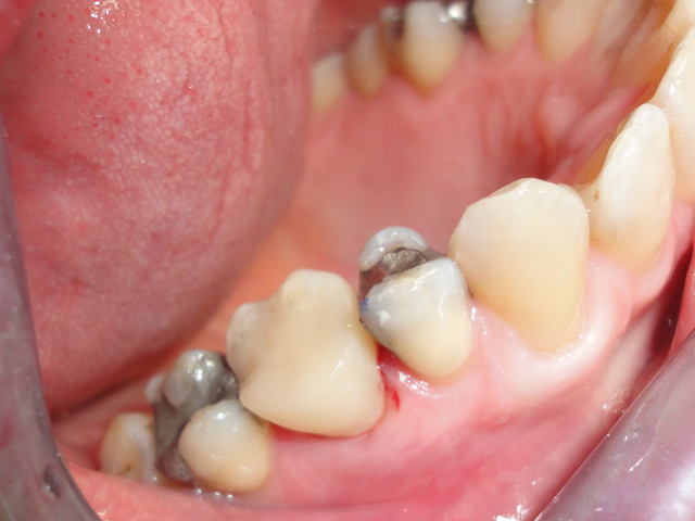 tooth rebuilt with white filling