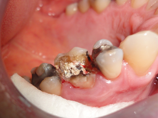 tooth rebuilt with white filling before