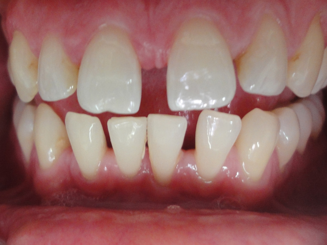Large gap incisors
